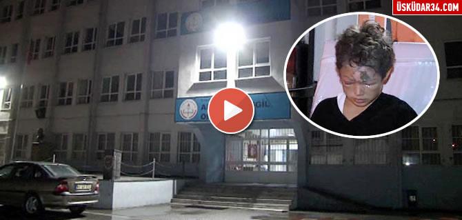 Üsküdar Ali Fuat Başgil Ortaokulu'nda 6. sınıfların Fen bilgisi dersinde laboratuvarda deney yapılırken patlama meydana geldi.